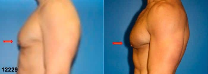 patient-12840-gynecomasty-male-pectoral-before-after-4