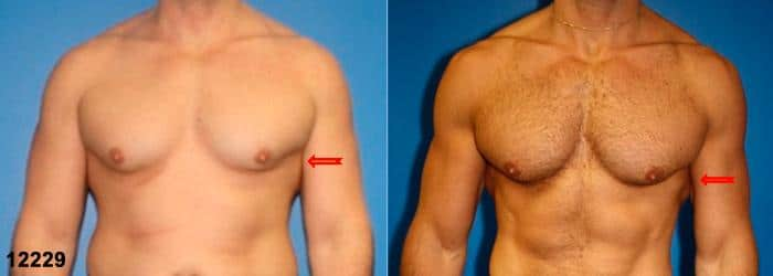 patient-12840-gynecomasty-male-pectoral-before-after
