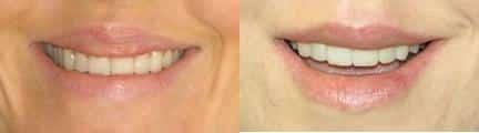 patient-12862-lip-enhancement-before-after