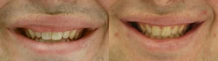 patient-12865-lip-enhancement-before-after