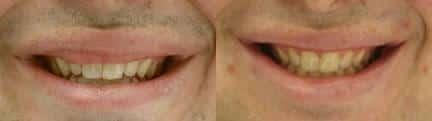 patient-12865-lip-enhancement-before-after