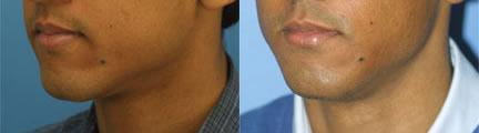 patient-12868-lip-enhancement-before-after-7