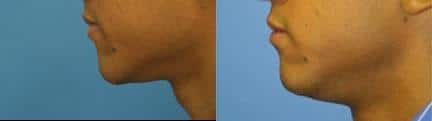 patient-12868-lip-enhancement-before-after-8