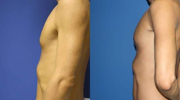 patient-12875-chest-augmentation-before-after-2