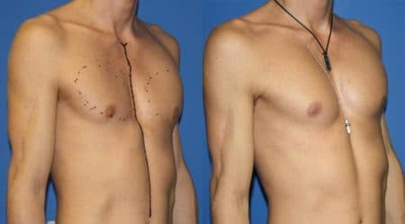 patient-12875-chest-augmentation-before-after-3