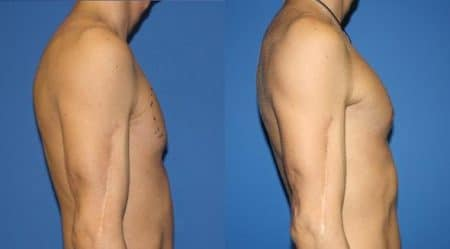 patient-12875-chest-augmentation-before-after-4