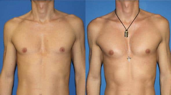 patient-12875-chest-augmentation-before-after
