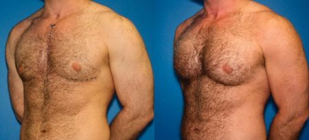 patient-12886-chest-augmentation-before-after-3