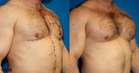patient-12901-chest-augmentation-before-after-1