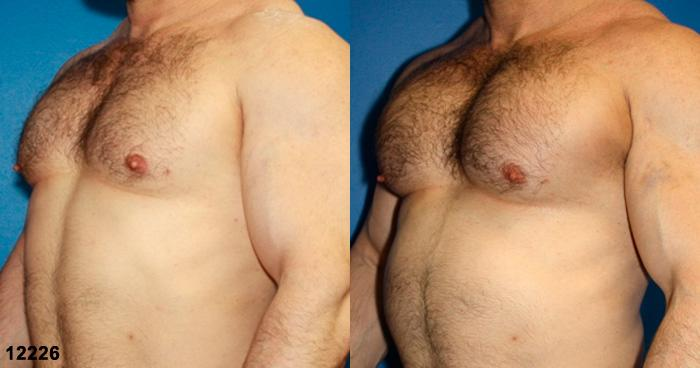 patient-12901-chest-augmentation-before-after-2