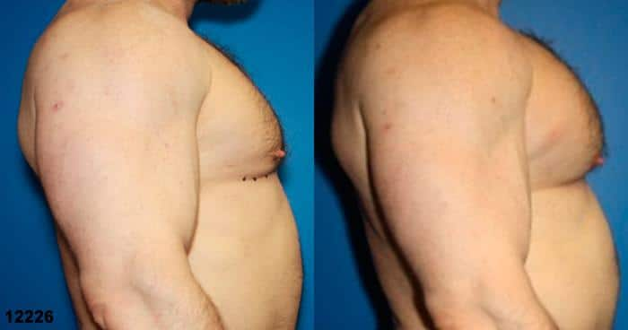 patient-12901-chest-augmentation-before-after-3