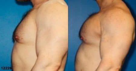 patient-12901-chest-augmentation-before-after-4