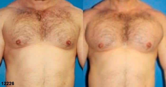 patient-12901-chest-augmentation-before-after