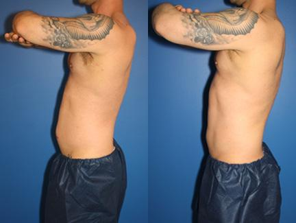 patient-12912-coolsculpting-before-after