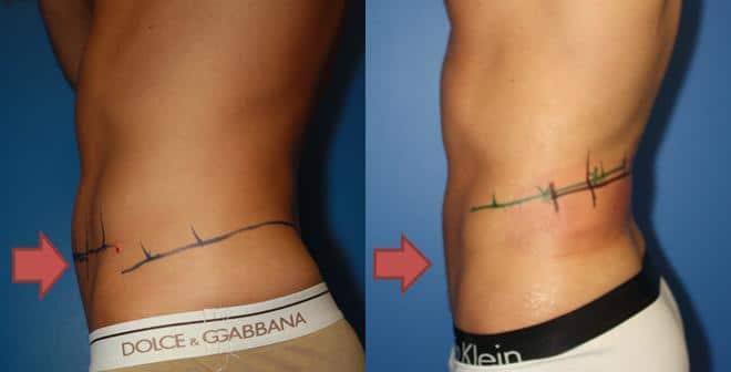 Image showing much of the fat in the abdomen region is removed after coolsculpting in New York