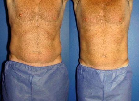 patient-12918-coolsculpting-before-after