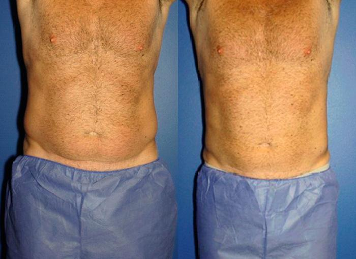 Image comparing an abdomen of a young male before and after coolsculpting procedure, the abdomen is leaned and extra fat is removed, New York, NY