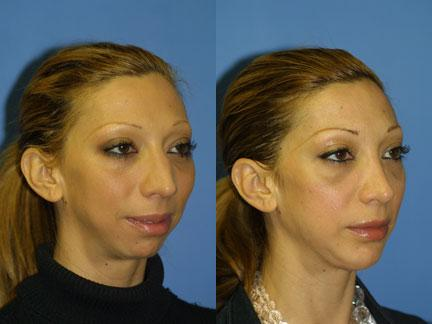 patient-12970-jaw-implants-before-after-1
