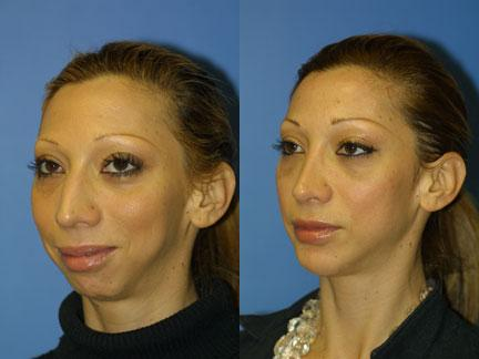 patient-12970-jaw-implants-before-after-2