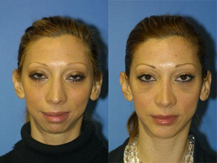 patient-12970-jaw-implants-before-after