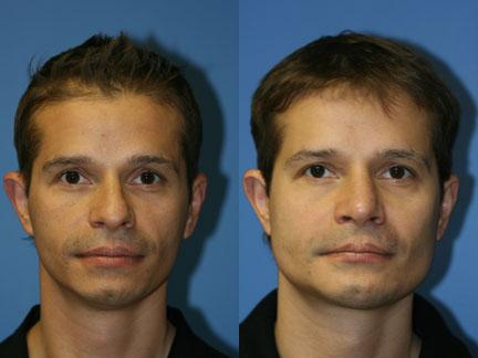 patient-12977-jaw-implants-before-after-4