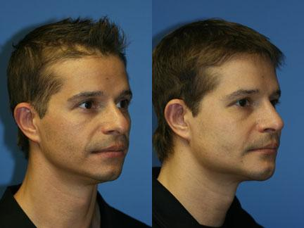 patient-12977-jaw-implants-before-after-5