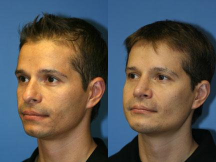patient-12977-jaw-implants-before-after-6