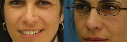 patient-12986-lesion-removal-before-after-2