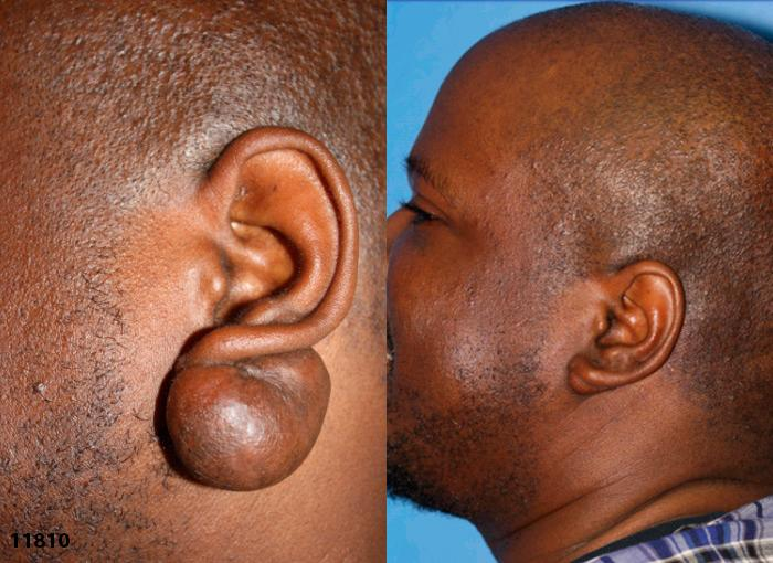 patient-12989-lesion-removal-before-after-2