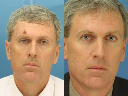 patient-13009-reconstruction-facial-before-after-1