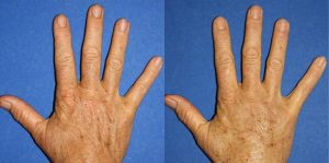 Hand Rejuvenation New York