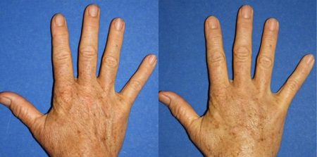 patient-13012-hand-rejuvenation-before-after