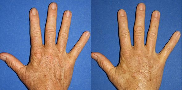 patient-13012-hand-rejuvenation-before-after