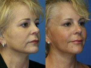 Before and after photo of facelift procedure in Dr. Miller's New York City office.