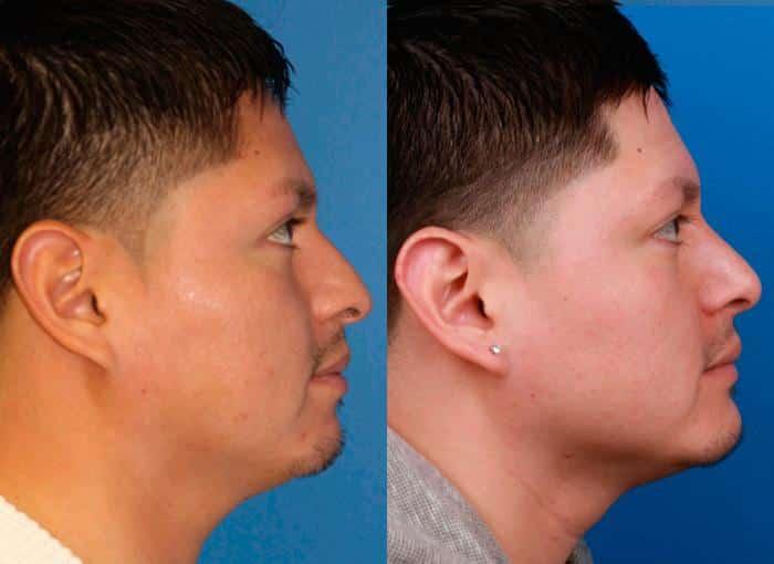 Nasal Tip Rhinoplasty