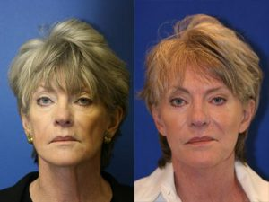 A neck lift before and after photo of a patient from our Manhattan office.