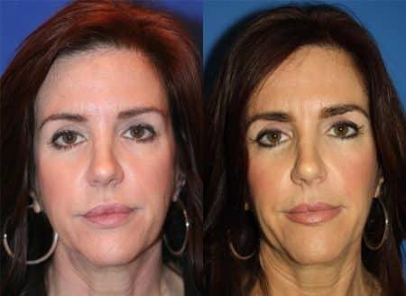 Facial Wrinkle Treatments