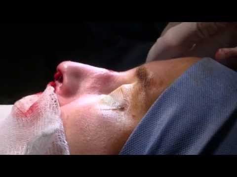 Dorsal Hump Reduction - Nose Surgery