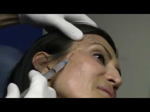 Temple Injections can help with signs of aging