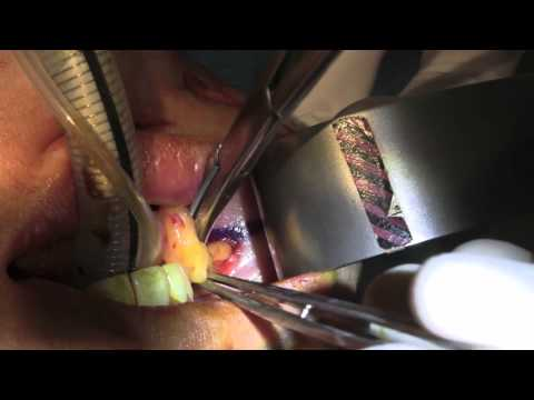 Buccal Fat Excision