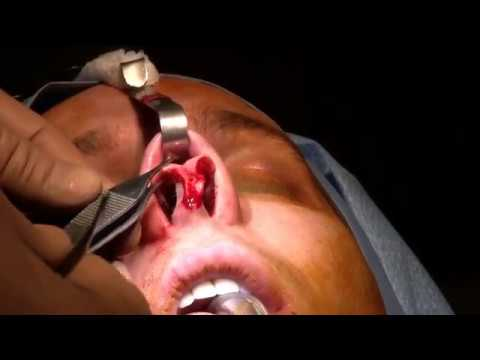 Rhinoplasty Patient Experience Video #4 Surgery day
