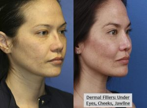 Two images of a female patient, before and after she had dermal fillers, her face looking more refreshed and youthful after dermal fillers, New York City, NY