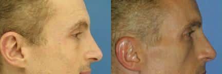 NYC Botox Forehead Wrinkle Treatment