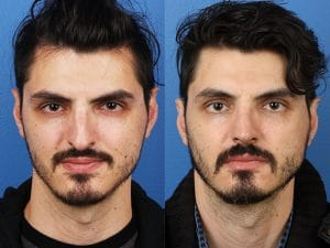 Man with asymmetrical nose is seen in left picture, and has a straight nose after rhinoplasty in the second picture.