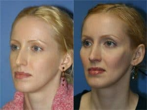 anti aging cheek implants