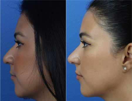 Rhinoplasty and Buccal Fat Removal with Dr. Miller