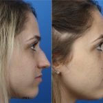 A woman on the left is shown with a larger nose. On the right the same woman is shown after rhinoplasty with a smaller nose.