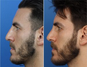 A man on the left is shown with a larger nose. On the right the same man is shown after rhinoplasty with a smaller nose.