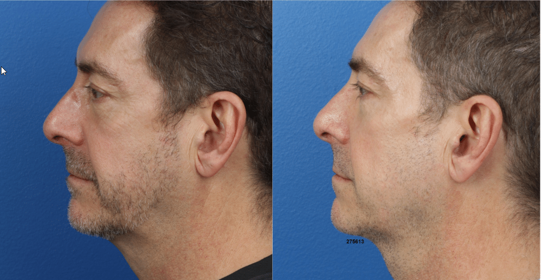 Before and after of a jawline augmentation in new york