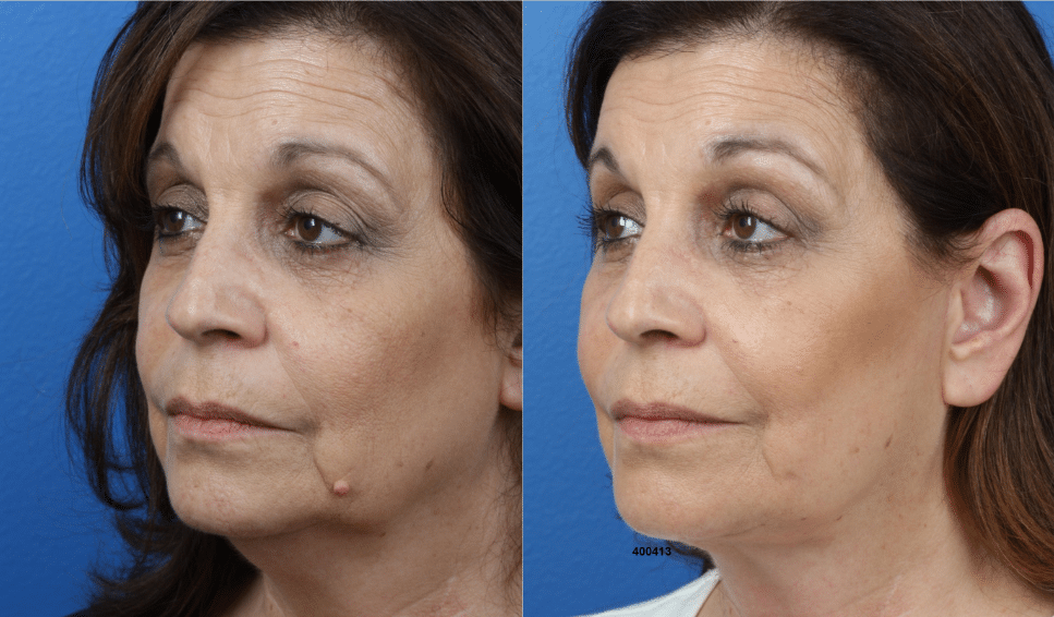 Before and after of a facelift in New York